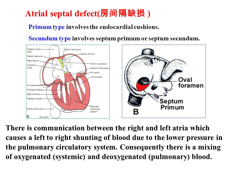 Atrial septal defect(房间隔缺损 )