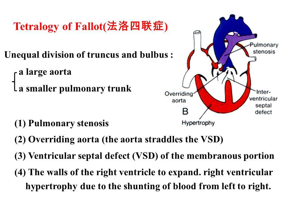 Tetralogy of Fallot(法洛四联症)