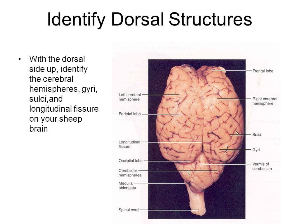 Identify Dorsal Structures