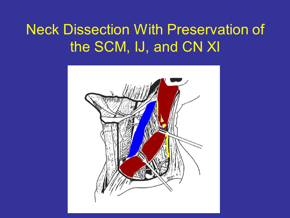 Neck Dissection With Preservation of the SCM, IJ, and CN XI
