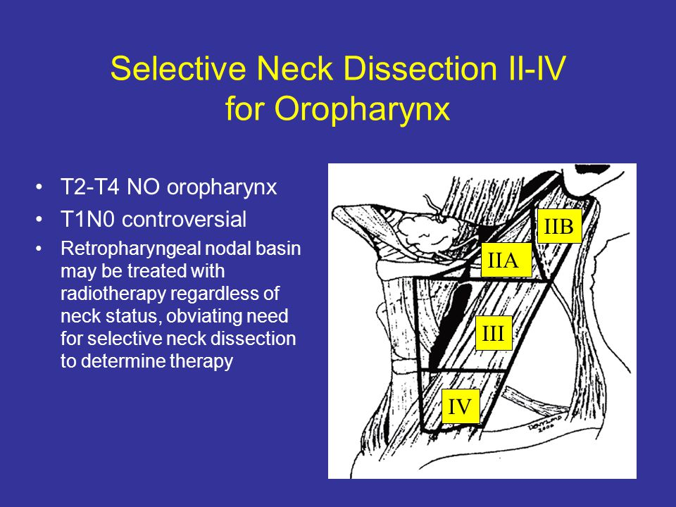 Selective Neck Dissection II-IV for Oropharynx