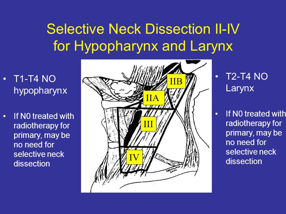 Selective Neck Dissection II-IV for Hypopharynx and Larynx