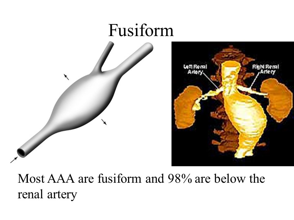 Fusiform Most AAA are fusiform and 98% are below the renal artery