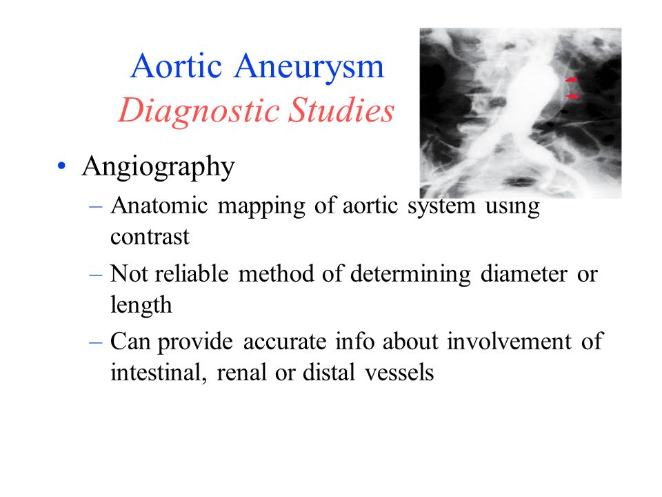Aortic Aneurysm Diagnostic Studies