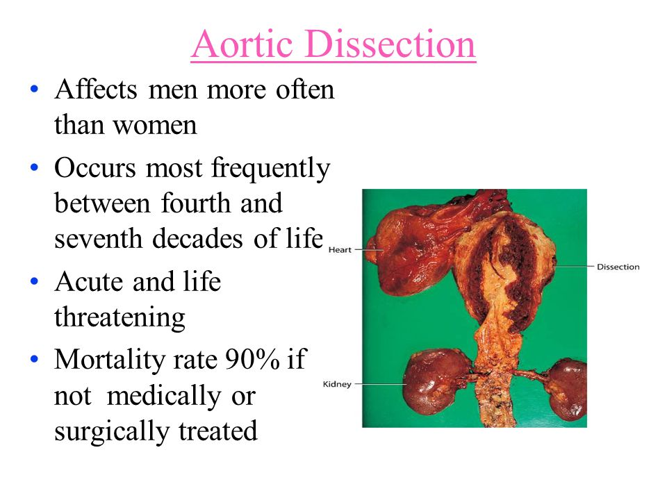 Aortic Dissection Affects men more often than women