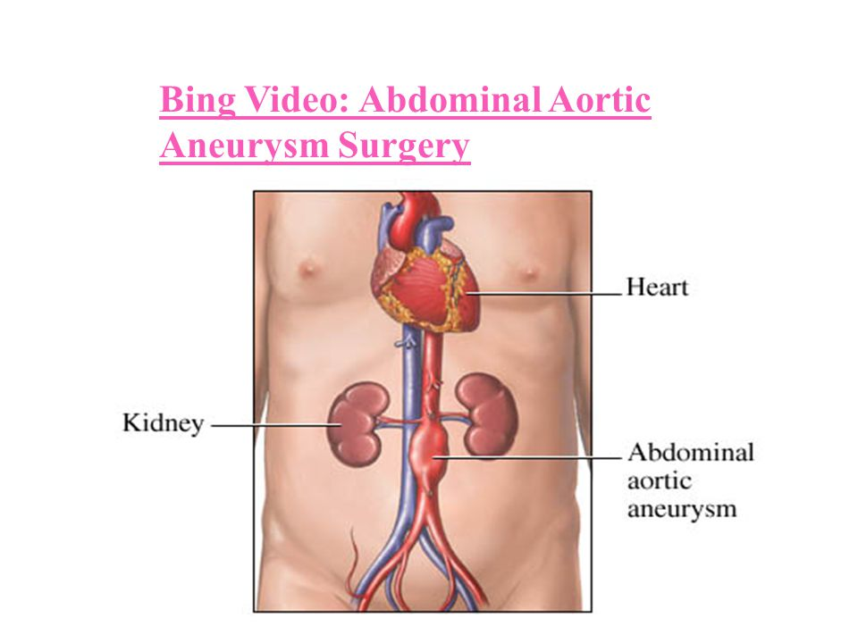 Bing Video: Abdominal Aortic Aneurysm Surgery