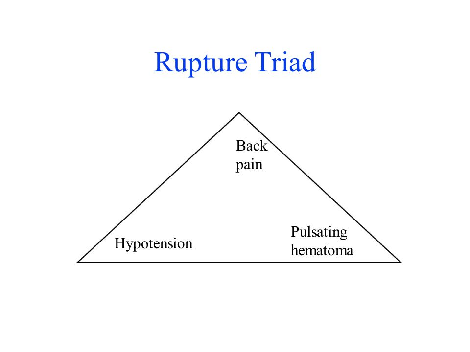 Rupture Triad Back pain Pulsating hematoma Hypotension