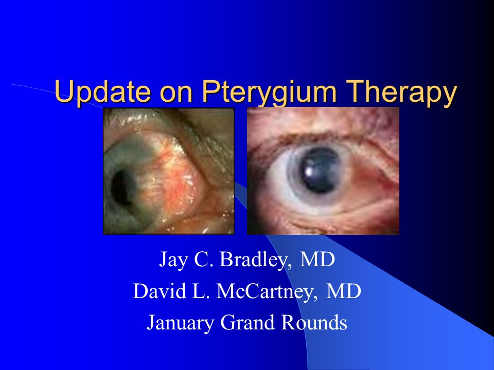 Update on Pterygium Therapy