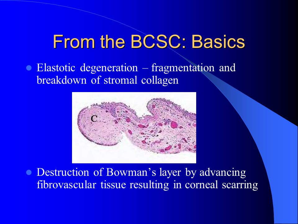 From the BCSC: Basics Elastotic degeneration – fragmentation and breakdown of stromal collagen.