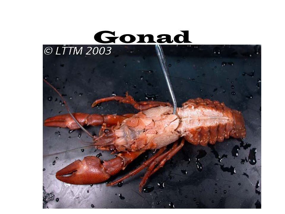 Gonad