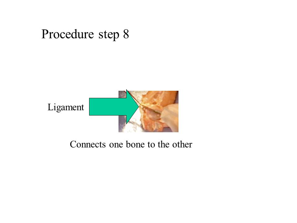 Procedure step 8 Ligament Connects one bone to the other