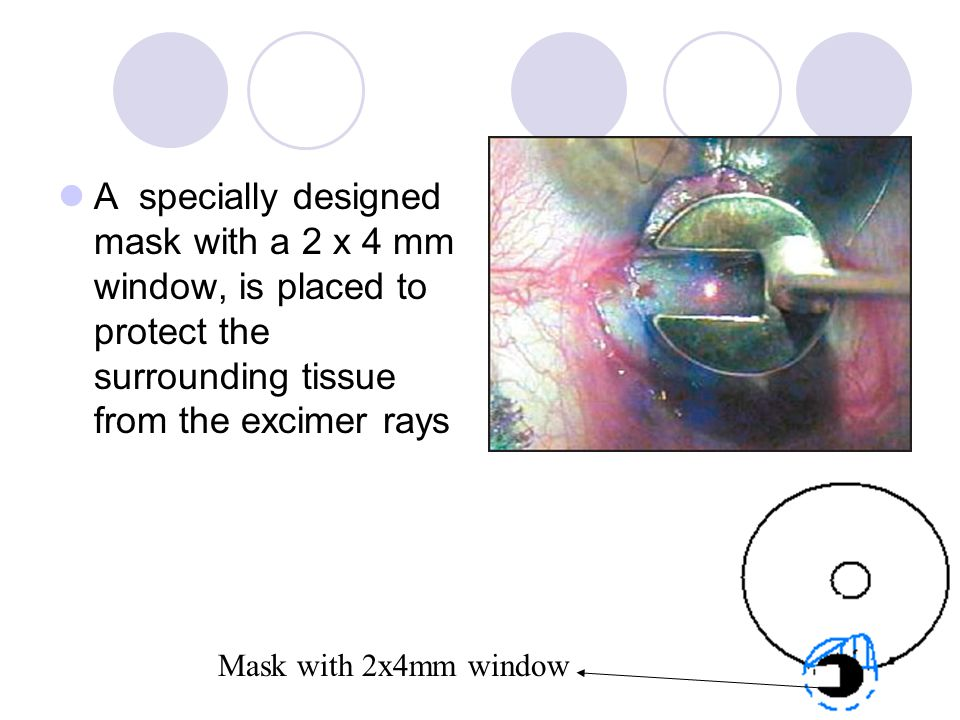 A specially designed mask with a 2 x 4 mm window, is placed to protect the surrounding tissue from the excimer rays