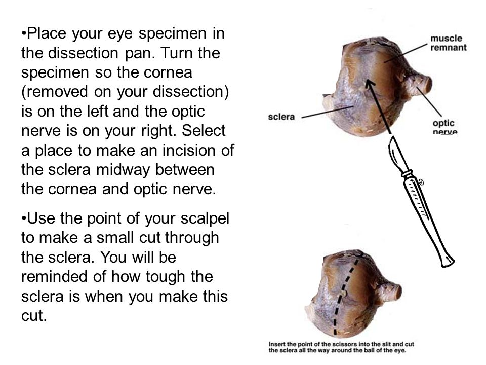Place your eye specimen in the dissection pan