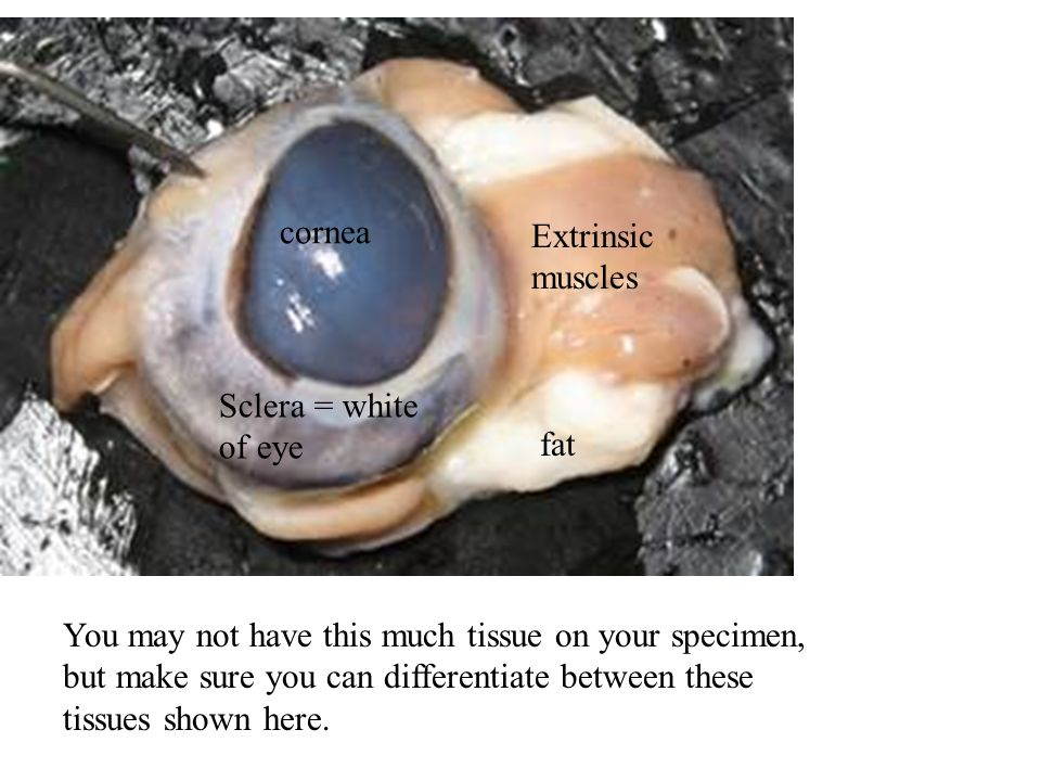 SHEEP EYE DISSECTION ppt video online download – Eye Dissection Worksheet