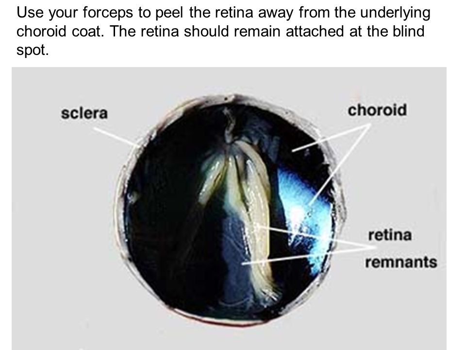 Use your forceps to peel the retina away from the underlying choroid coat.