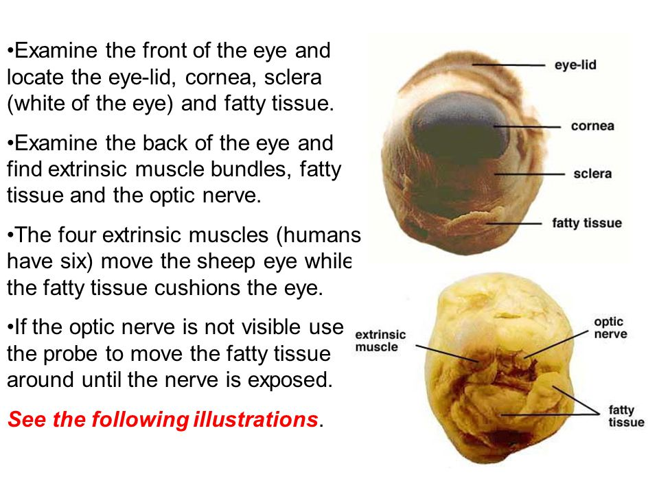 Examine the front of the eye and locate the eye-lid, cornea, sclera (white of the eye) and fatty tissue.