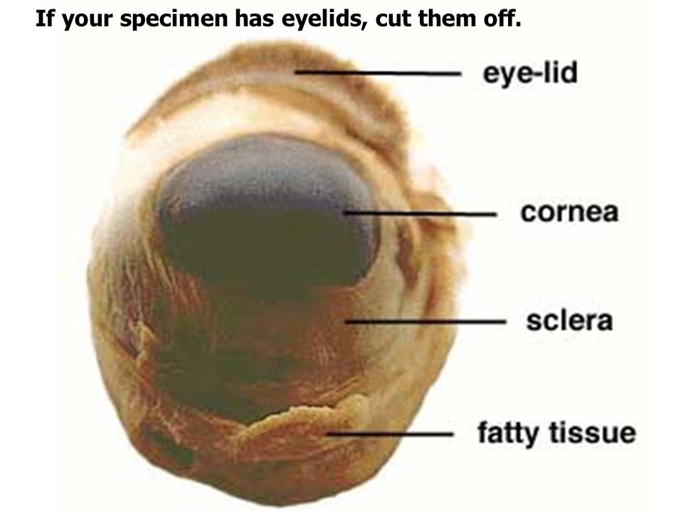 If your specimen has eyelids, cut them off.