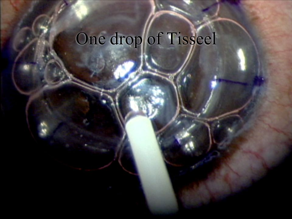 One drop of Tisseel