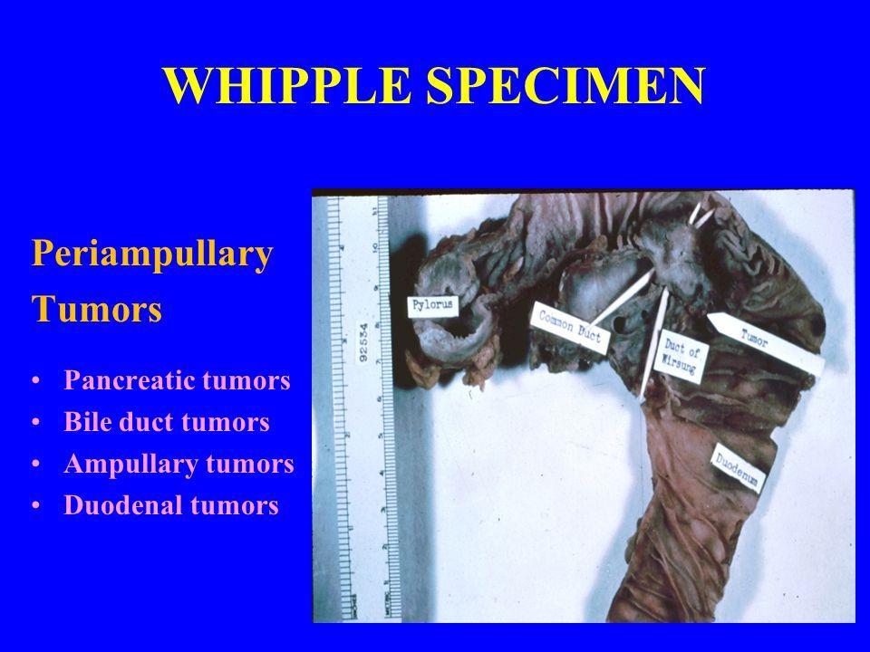 WHIPPLE SPECIMEN Periampullary Tumors Pancreatic tumors