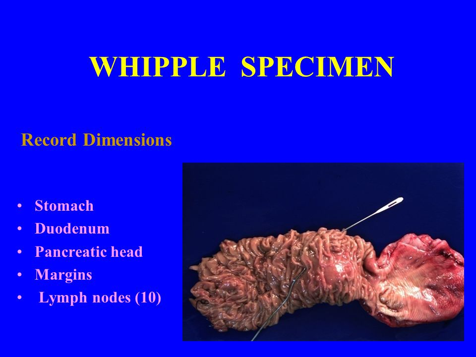 WHIPPLE SPECIMEN Record Dimensions Stomach Duodenum Pancreatic head