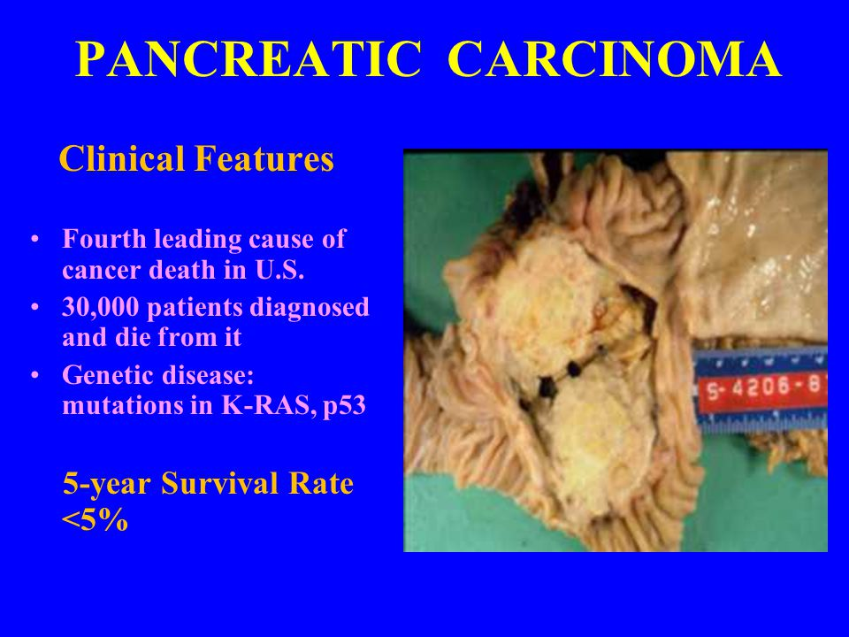 PANCREATIC CARCINOMA Clinical Features 5-year Survival Rate <5%