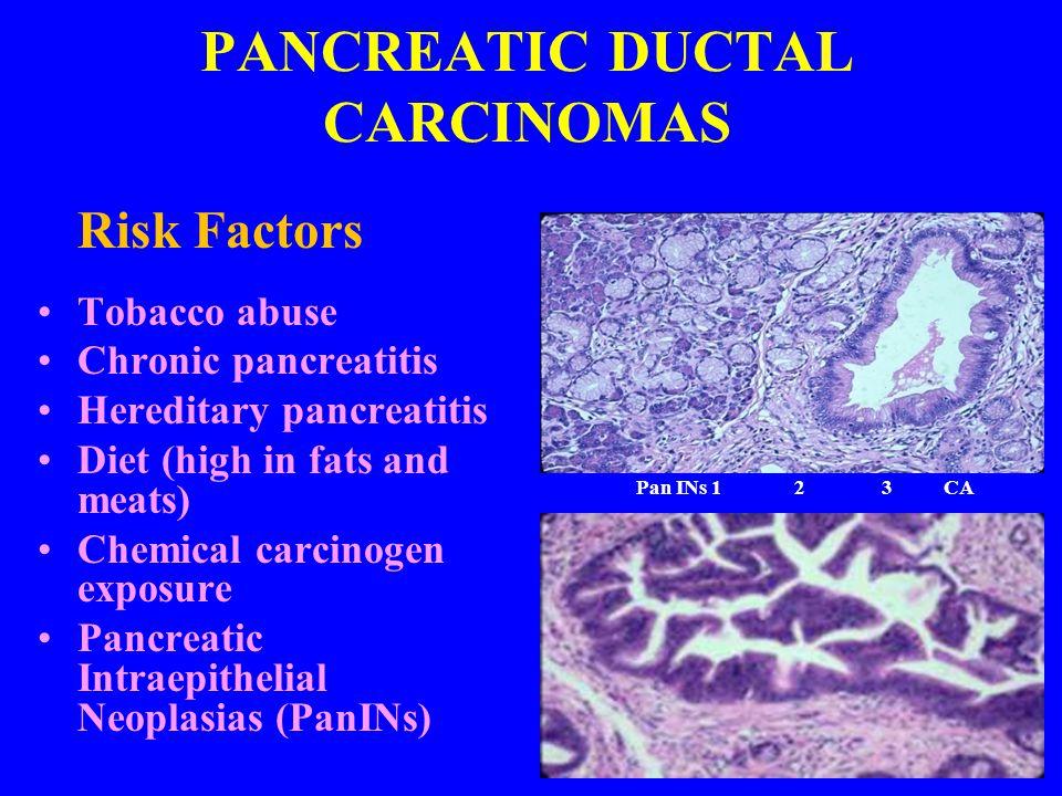 PANCREATIC DUCTAL CARCINOMAS
