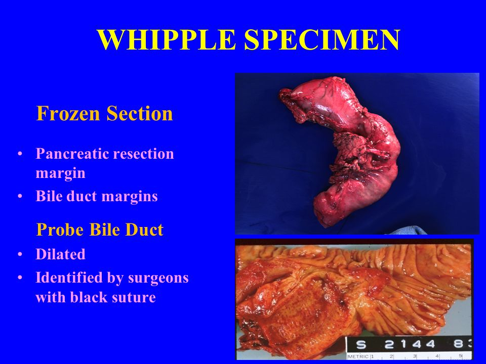 WHIPPLE SPECIMEN Frozen Section Probe Bile Duct