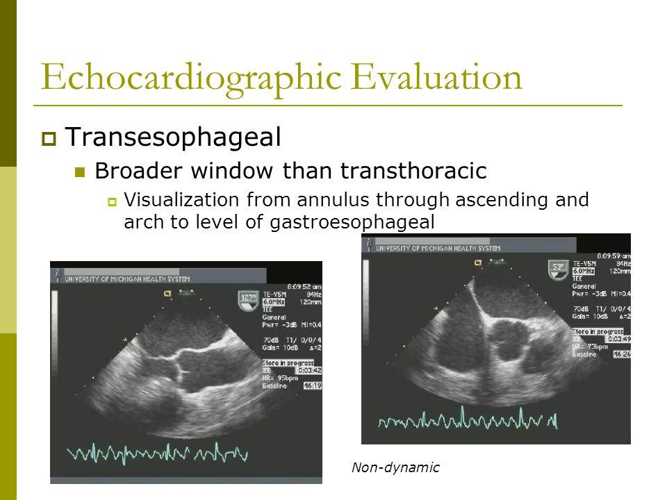 Echocardiographic Evaluation