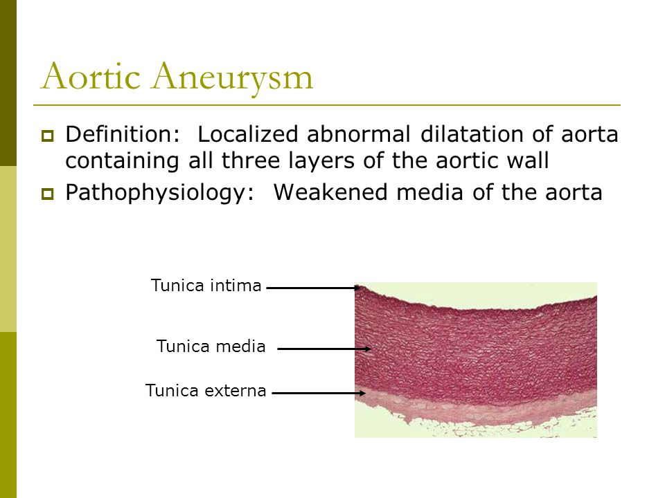Aortic Aneurysm Definition: Localized abnormal dilatation of aorta containing all three layers of the aortic wall.