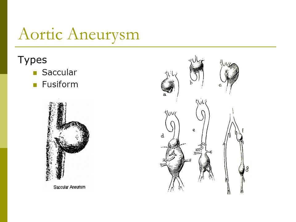 Aortic Aneurysm Types Saccular Fusiform