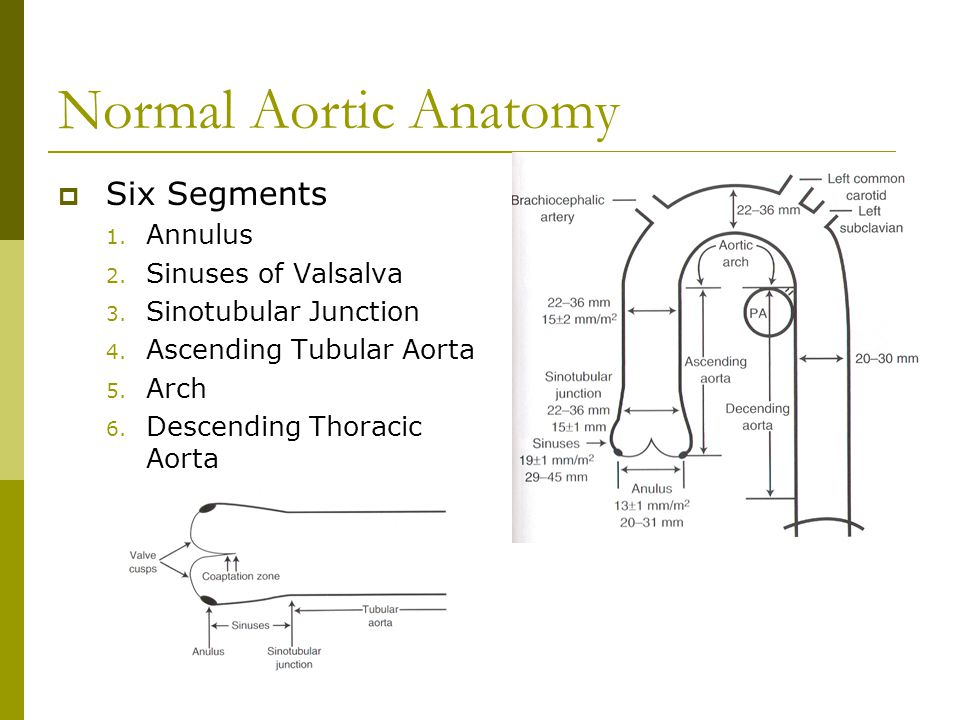 Normal Aortic Anatomy Six Segments Annulus Sinuses of Valsalva