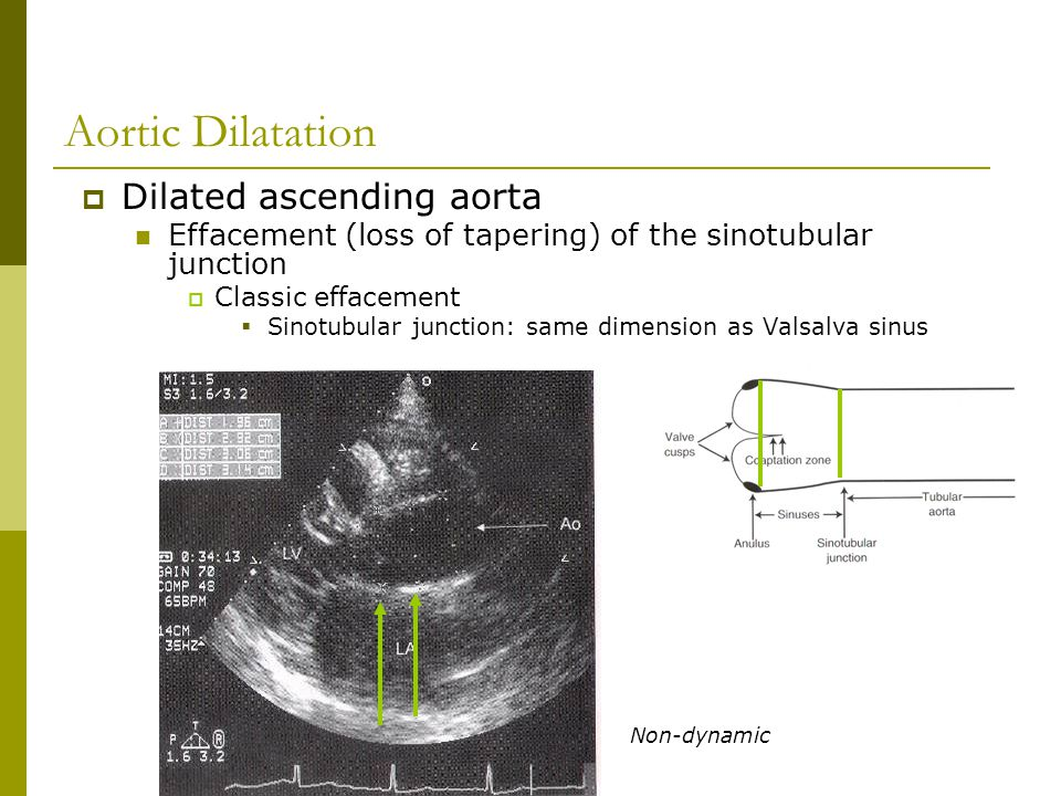 Aortic Dilatation Dilated ascending aorta