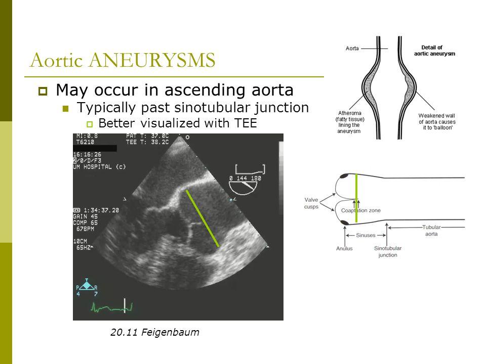 Aortic ANEURYSMS May occur in ascending aorta