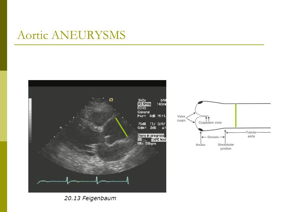 Aortic ANEURYSMS 20.13 Feigenbaum