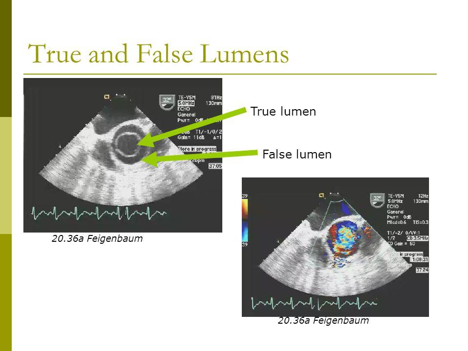 True and False Lumens True lumen False lumen 20.36a Feigenbaum