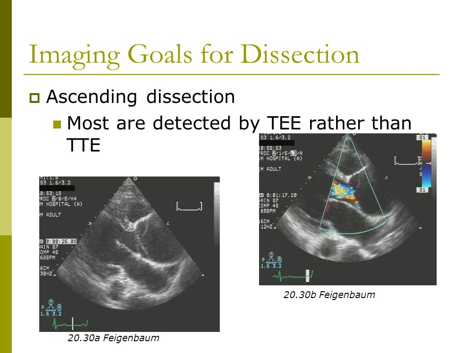 Imaging Goals for Dissection