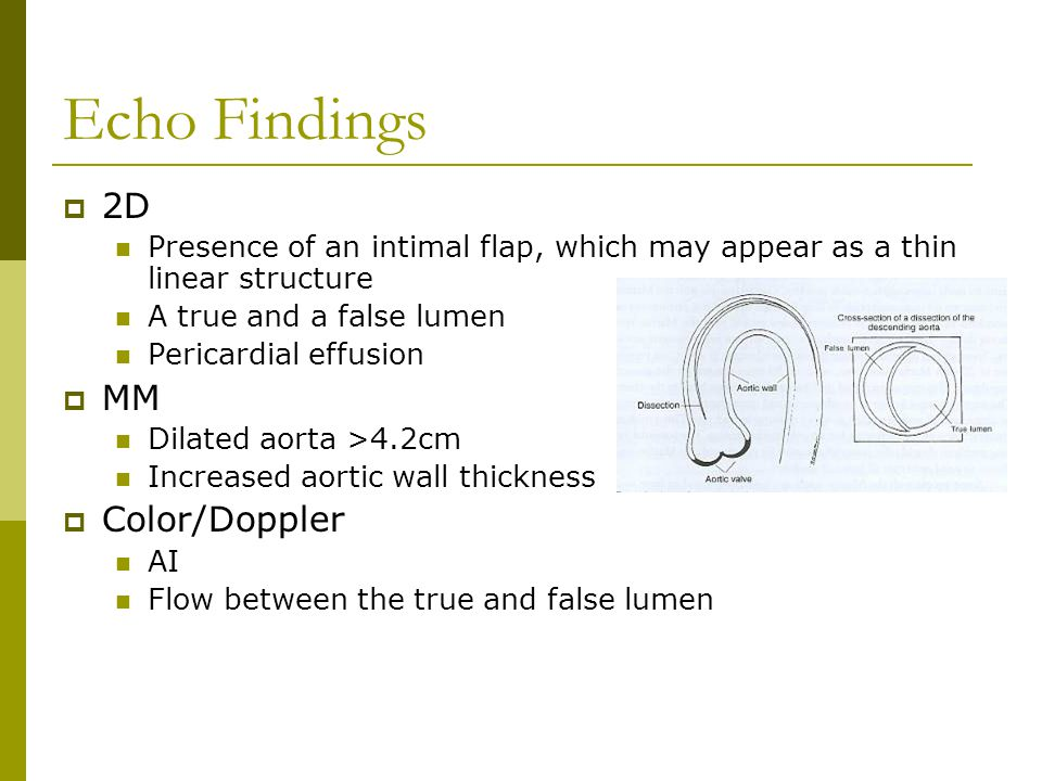 Echo Findings 2D MM Color/Doppler