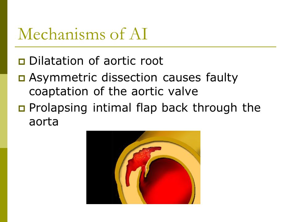 Mechanisms of AI Dilatation of aortic root