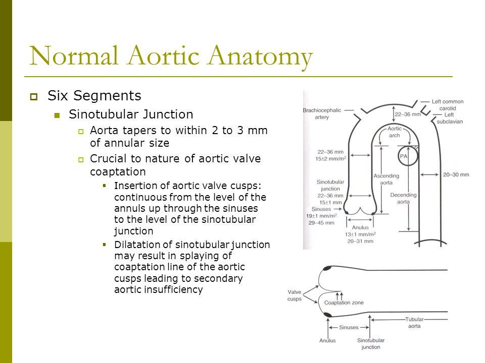 Normal Aortic Anatomy Six Segments Sinotubular Junction