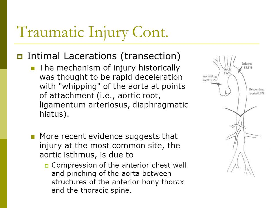 Traumatic Injury Cont. Intimal Lacerations (transection)