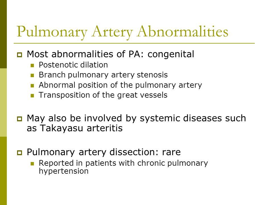 Pulmonary Artery Abnormalities