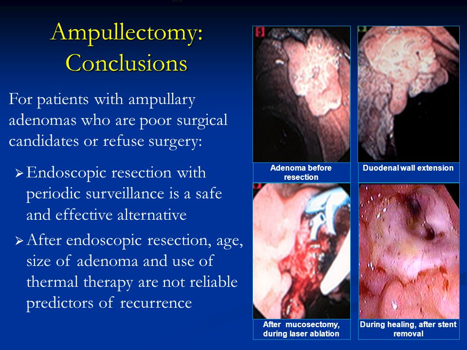 Ampullectomy: Conclusions