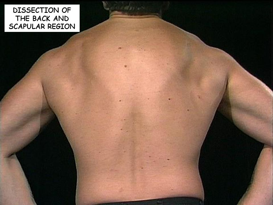 DISSECTION OF THE BACK AND SCAPULAR REGION