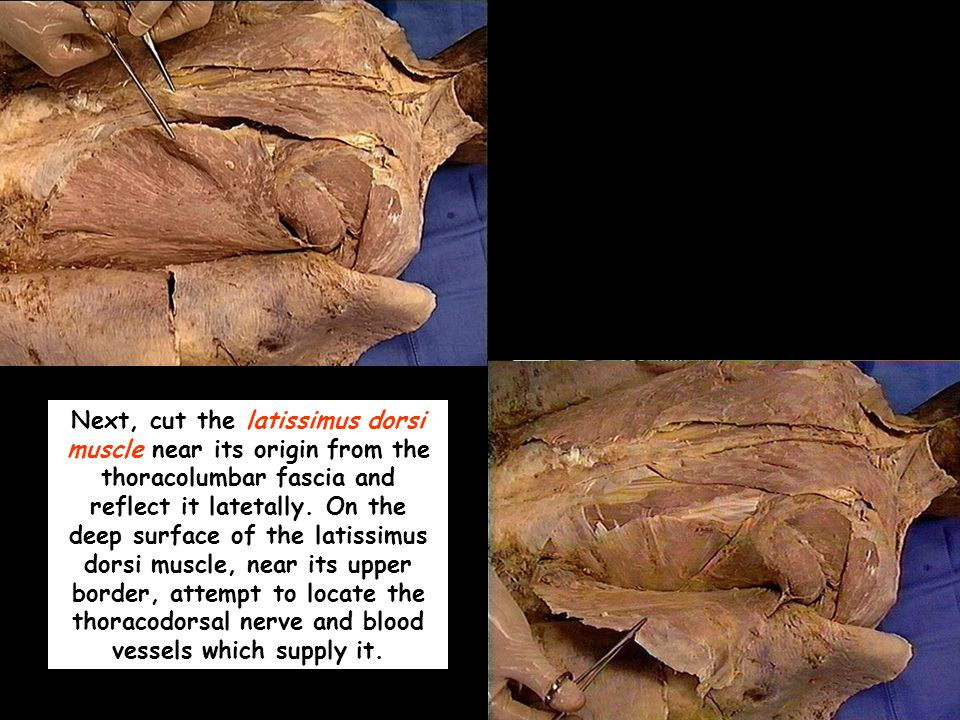 Next, cut the latissimus dorsi muscle near its origin from the thoracolumbar fascia and reflect it latetally.