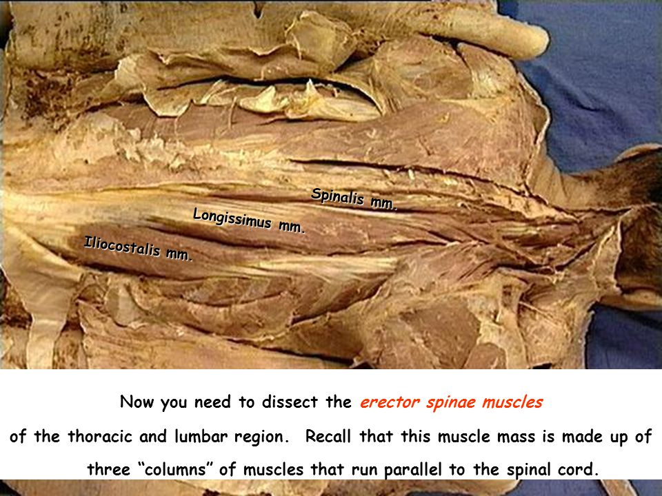 DISSECTION OF THE BACK AND SCAPULAR REGION - ppt video ...
