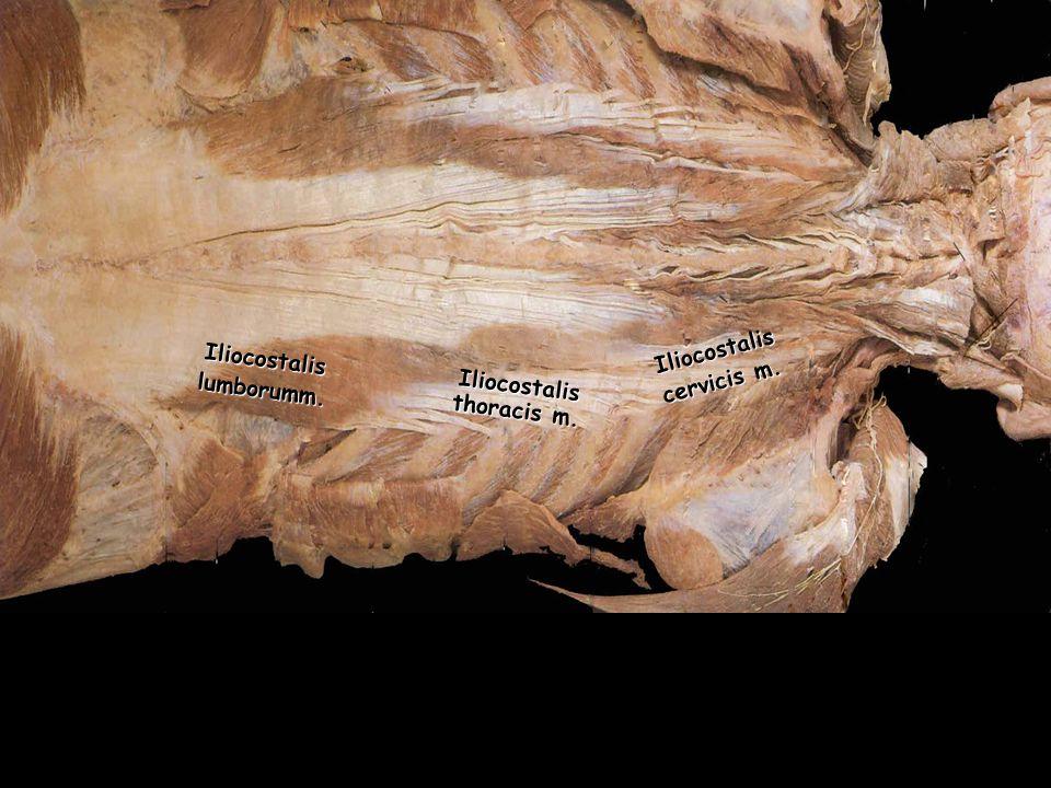 Iliocostalis thoracis m.