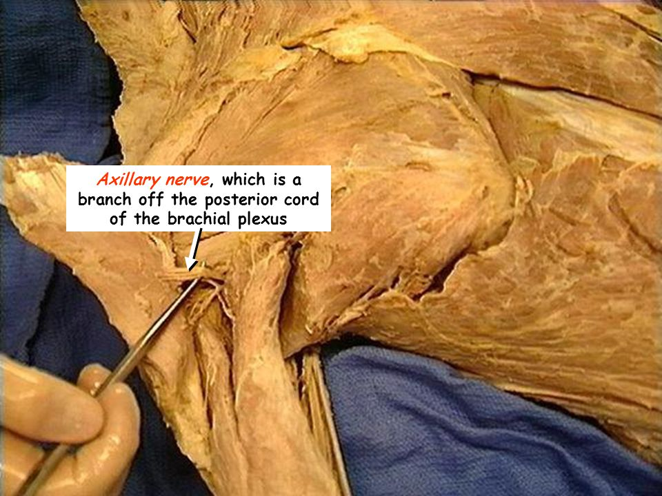 Axillary nerve, which is a branch off the posterior cord of the brachial plexus