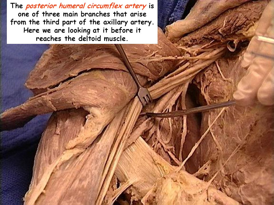The posterior humeral circumflex artery is one of three main branches that arise from the third part of the axillary artery.