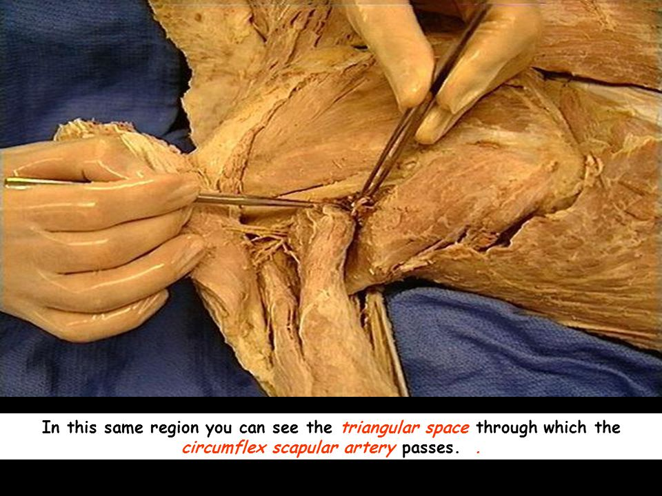 In this same region you can see the triangular space through which the circumflex scapular artery passes.