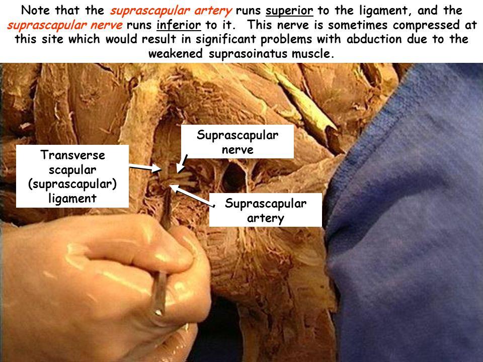 Transverse scapular (suprascapular) ligament